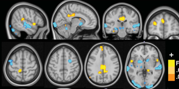 Brain scans from researcher's lab