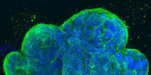 Three-dimensional culture of human breast cancer cells