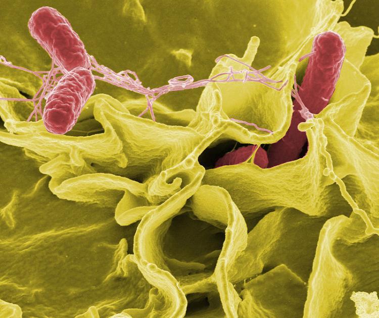 salmonella bacteria under a microscope
