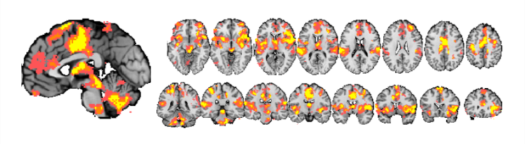 Brain scans from the study
