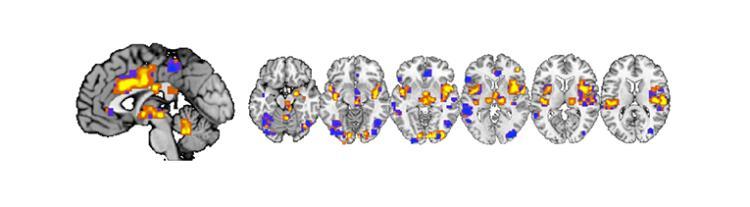 Pain signature in the brain