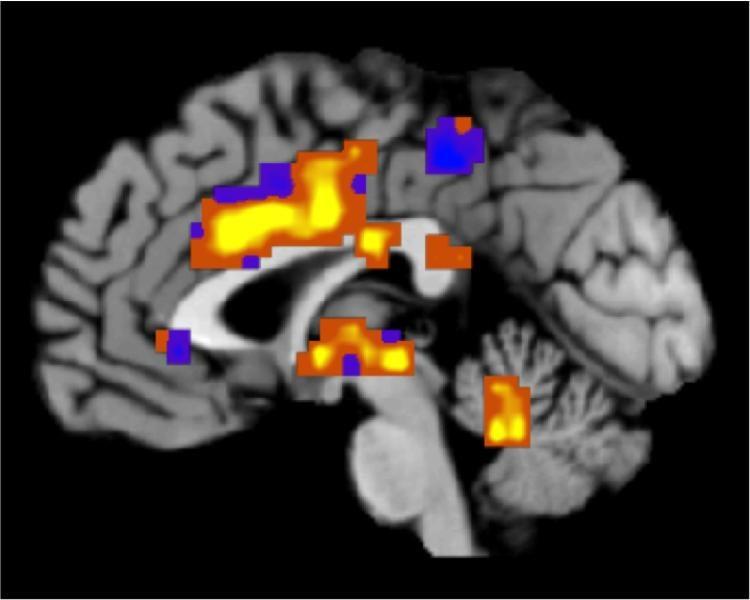 Pain signature in brain