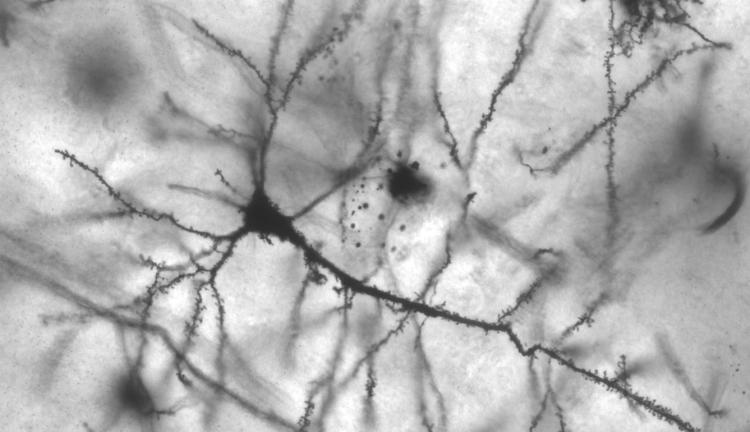 Golgi stained pyramidal neuron in the hippocampus of an epileptic patient
