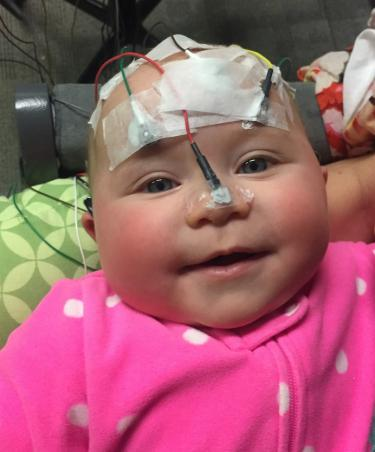 baby with electrodes on her head