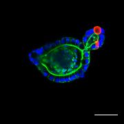 An intestinal organoid