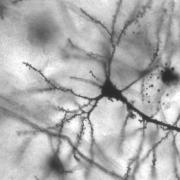 Golgi stained pyramidal neuron in the hippocampus of an epileptic patient.