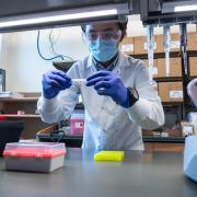 Molecular, cellular and developmental biology graduate student Quing Yang examines samples as part of the process of a rapid, portable saliva-based COVID-19 test able to return results in 45 minutes in the Sawyer lab at the Biofrontiers Institute at the University of Colorado Boulder . (Photo by Glenn Asakawa/University of Colorado)