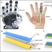 prosthetic hand diagram